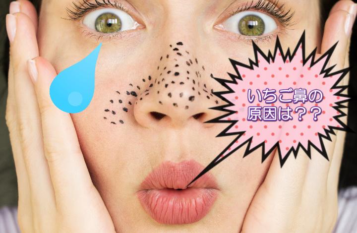 いちご鼻 原因